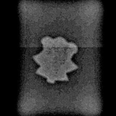 Radiographie du CE