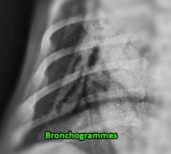 Bronchogrammes LMDr