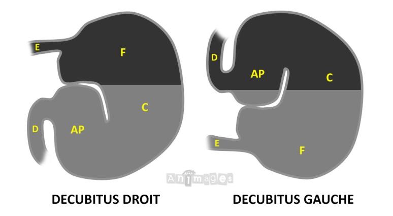 Illustration decubitus lateral