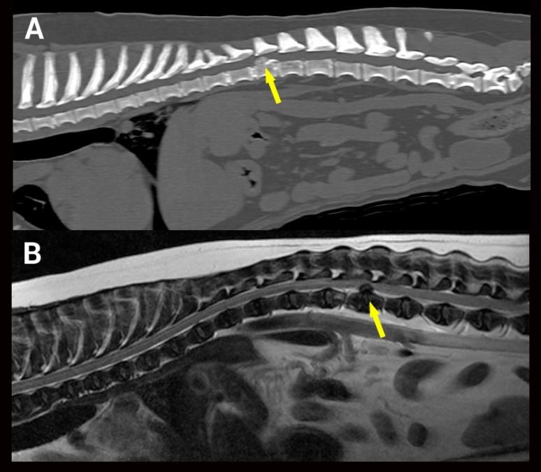 Comparaison CT-MR hernie type I