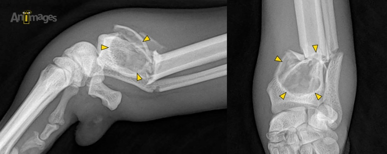kyste osseux fracture pathologique_annot